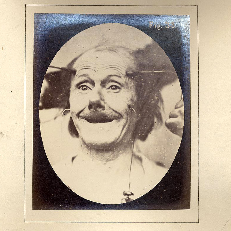 La sonrisa de Duchenne y la de Mona Lisa – Neurociencia