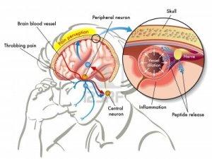 15472529-migraine