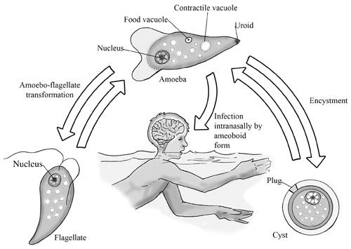 naegleria fowleri tratamiento
