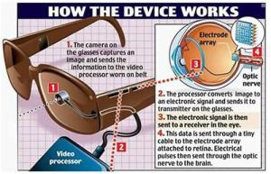 Implante-de-ojo-bionico-2