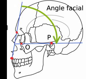 653px-Angle_facial