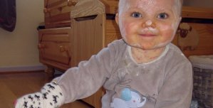 8-Bebé-con-varicela