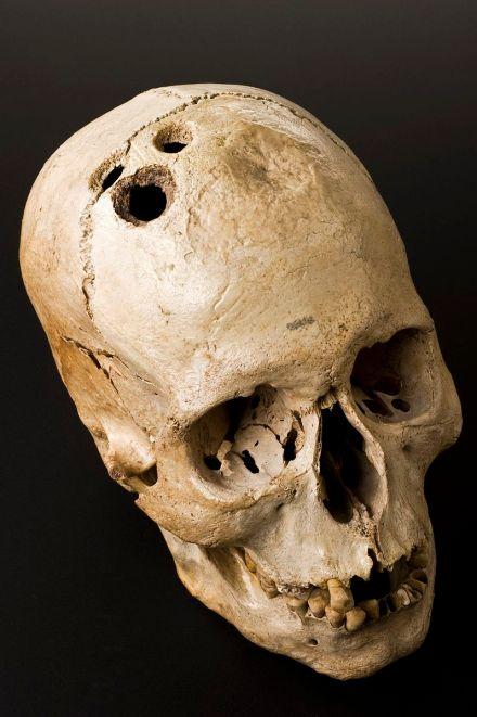 Bronze_Age_skull_from_Jericho,_Palestine,_2200-2000_Wellcome_L0058402