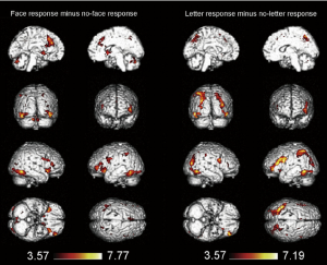 Fig.-8-e-Activation-for-face-responses-relative-to-no-face-responses-(left)-and