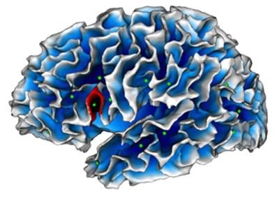 brocas-area-autism