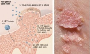 The-17-Most-Important-Things-to-Know-About-Human-Papillomavirus-HPV