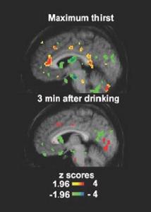thirst-regulation-brain-scan_red