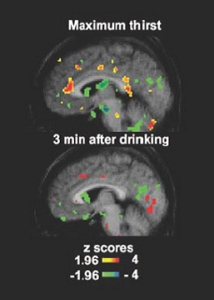 thirst-regulation-brain-scan_red